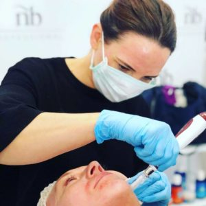 Micro-Needling at Beauty 154 in Lancaster, Lancashire